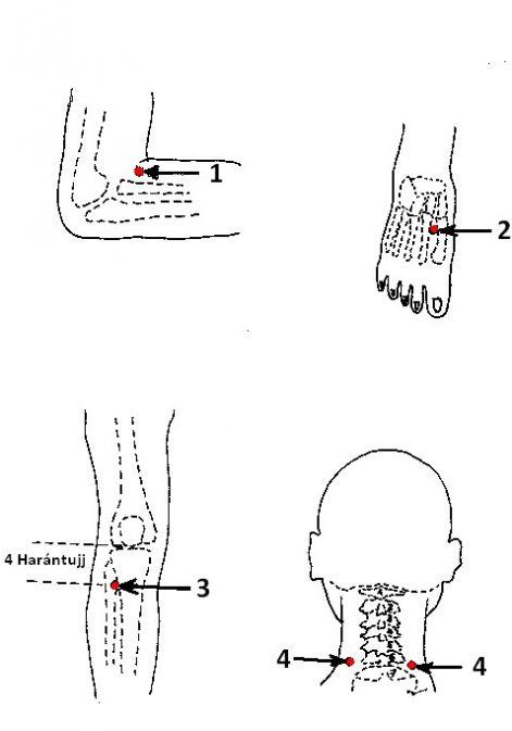 akupunktúra a magas vérnyomásért