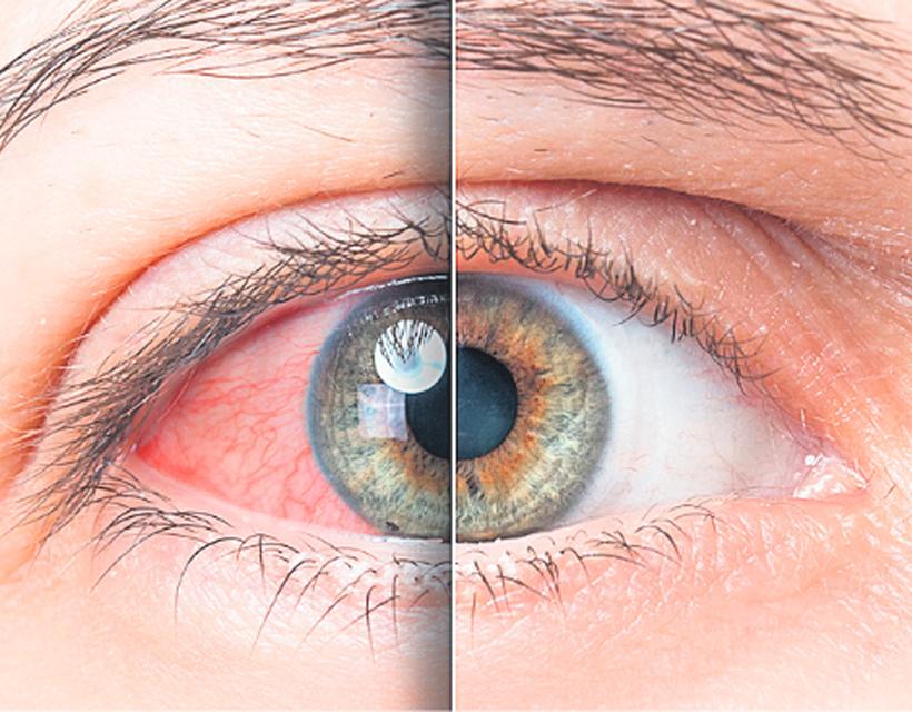 magas vérnyomás és a szem pupillái)
