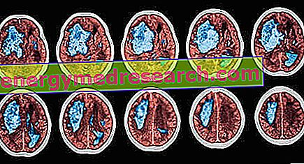 magas vérnyomás aneurysmával