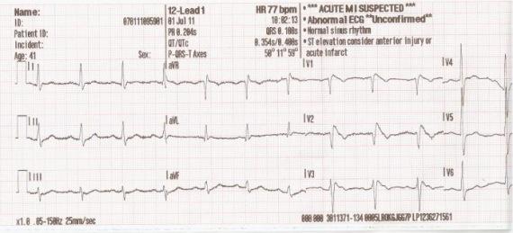 EKG elemzés magas vérnyomás esetén)