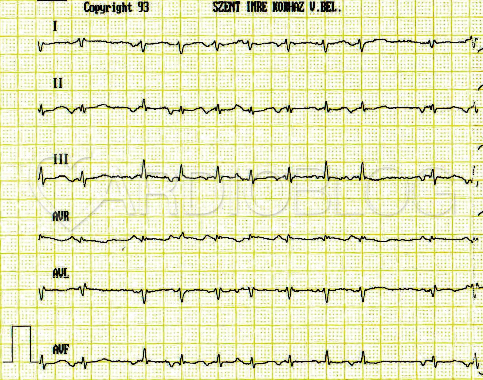 EKG átirat hipertónia esetén)