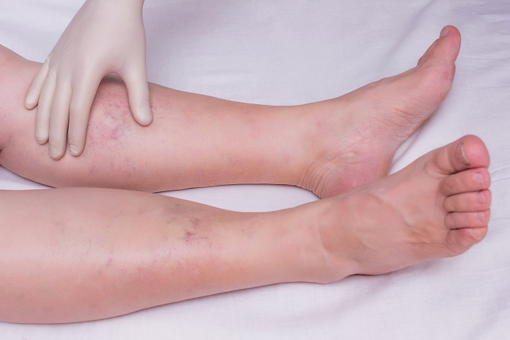 a lábak betegségei magas vérnyomásban