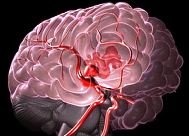 magas vérnyomás okozta agyi vérzés hogyan kell vizet inni magas vérnyomás esetén