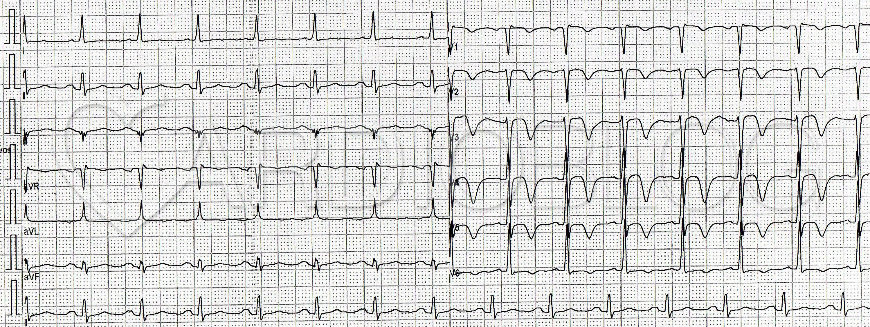 A szív, a norma vagy a patológia elektromos tengelyének függőleges pozíciója