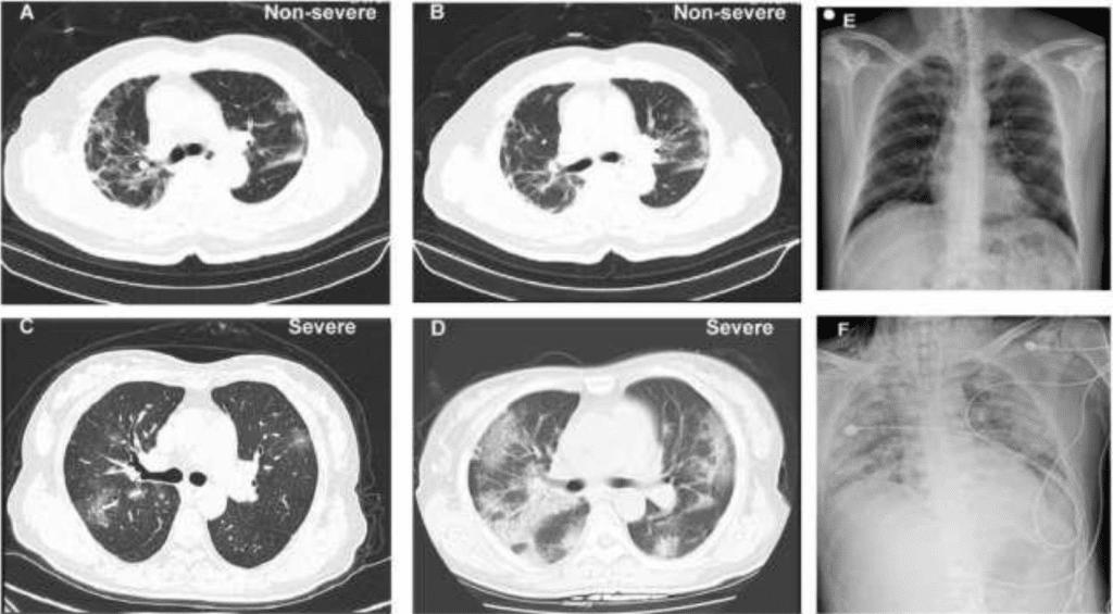 kardiopulmonáris hipertónia magnézium-szulfát magas vérnyomás kezelésére
