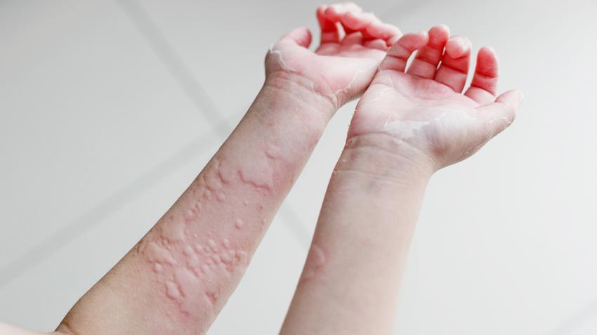 kiütés a lábakon magas vérnyomás esetén magas vérnyomás rákban