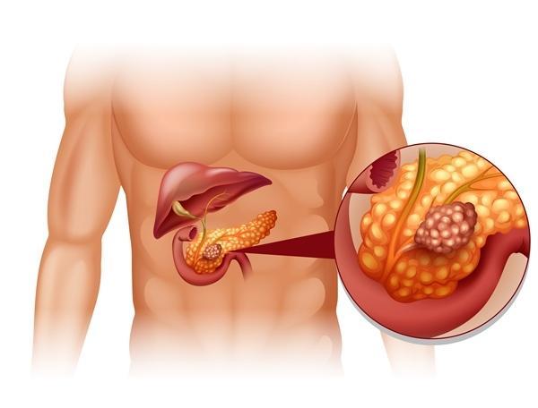 A heveny hasnyálmirigy-gyulladás és tünetei