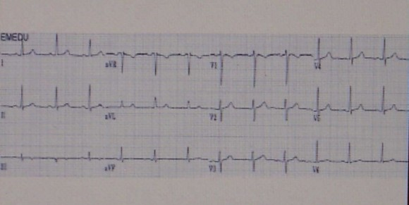 magas vérnyomás jelei az EKG-n