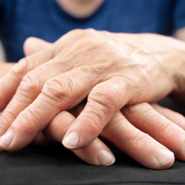 magas vérnyomás rheumatoid arthritisben)
