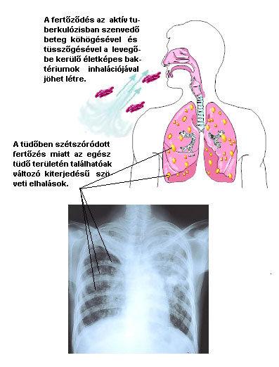 tuberkulózis és magas vérnyomás)