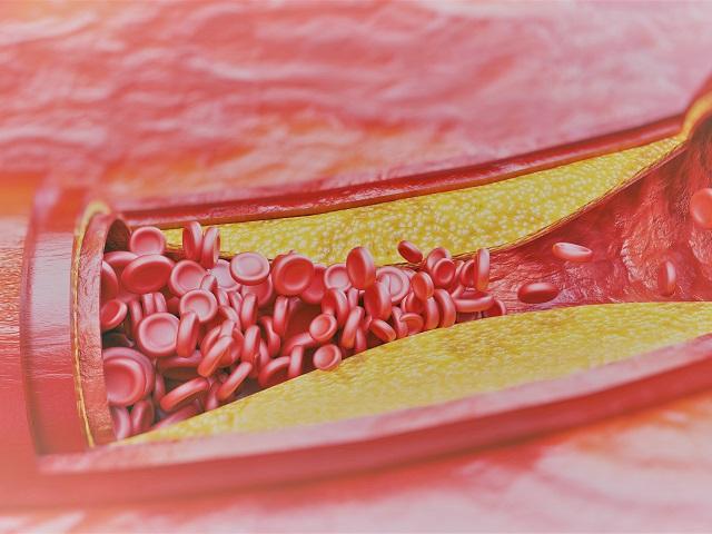 lehetséges-e a hipertónia teljes gyógyítása népi gyógymódokkal