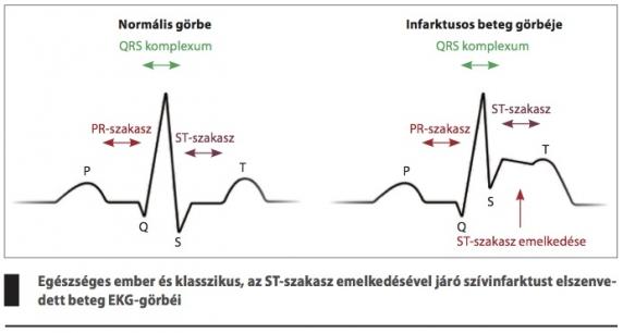 magas vérnyomás és magnézium 6-nál Echinacea tinktúra és magas vérnyomás