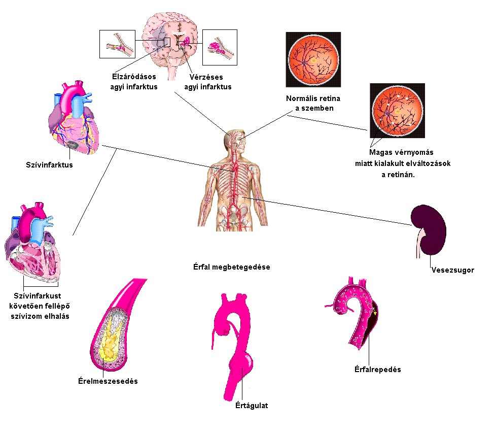 a magas vérnyomás agyi hatásai A magas vérnyomás 3 stádiumának 4 fokú kockázata
