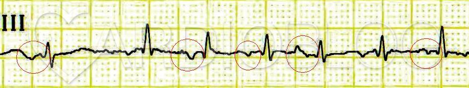 Hogyan készüljünk fel a szív EKG-jére? - Szívizomgyulladás November