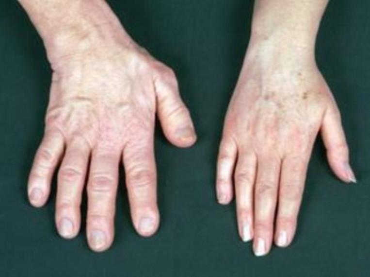 akromegália és magas vérnyomás