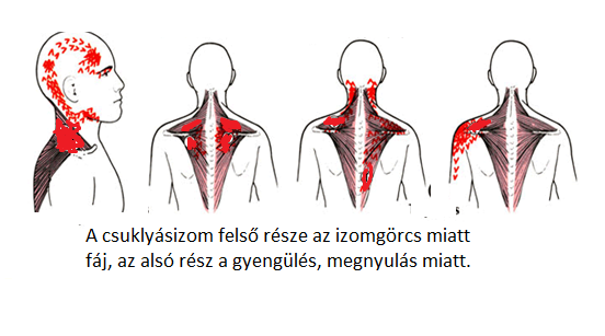 A nyaki ér ultrahang miért fontos magas vérnyomás esetén?