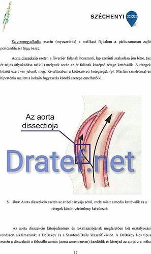 a flexor hipertónia az