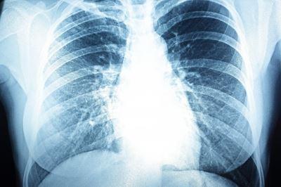pulmonalis hipertónia prognózisa
