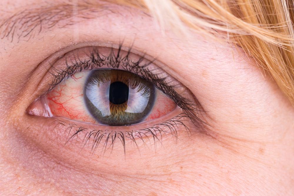magas vérnyomás a szemekben magas vérnyomás 2a fok mi ez