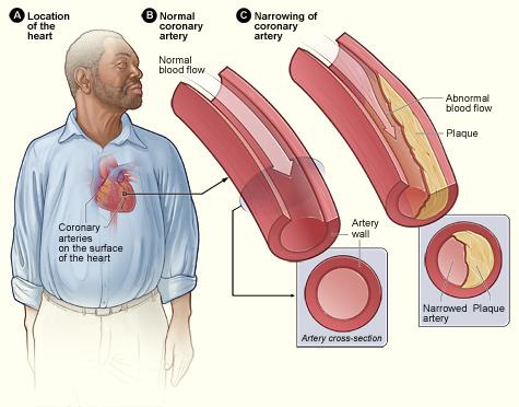 magas vérnyomás elleni gyógyszerek koleszterinre)