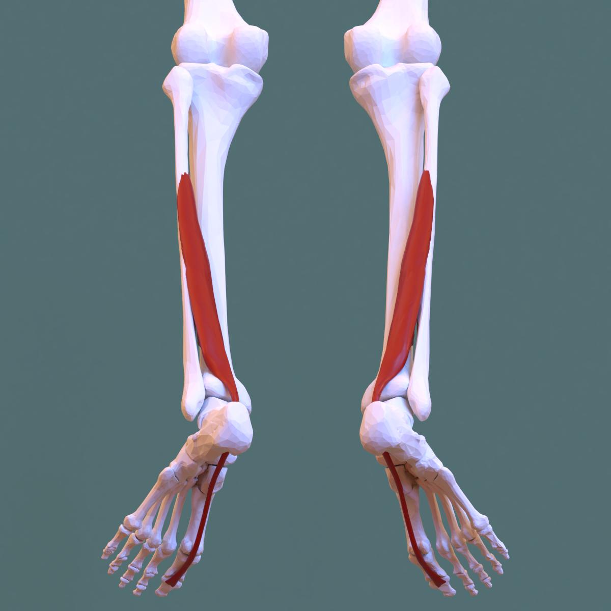 a flexor hipertónia az)