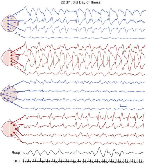 EKG hipertónia feltárására