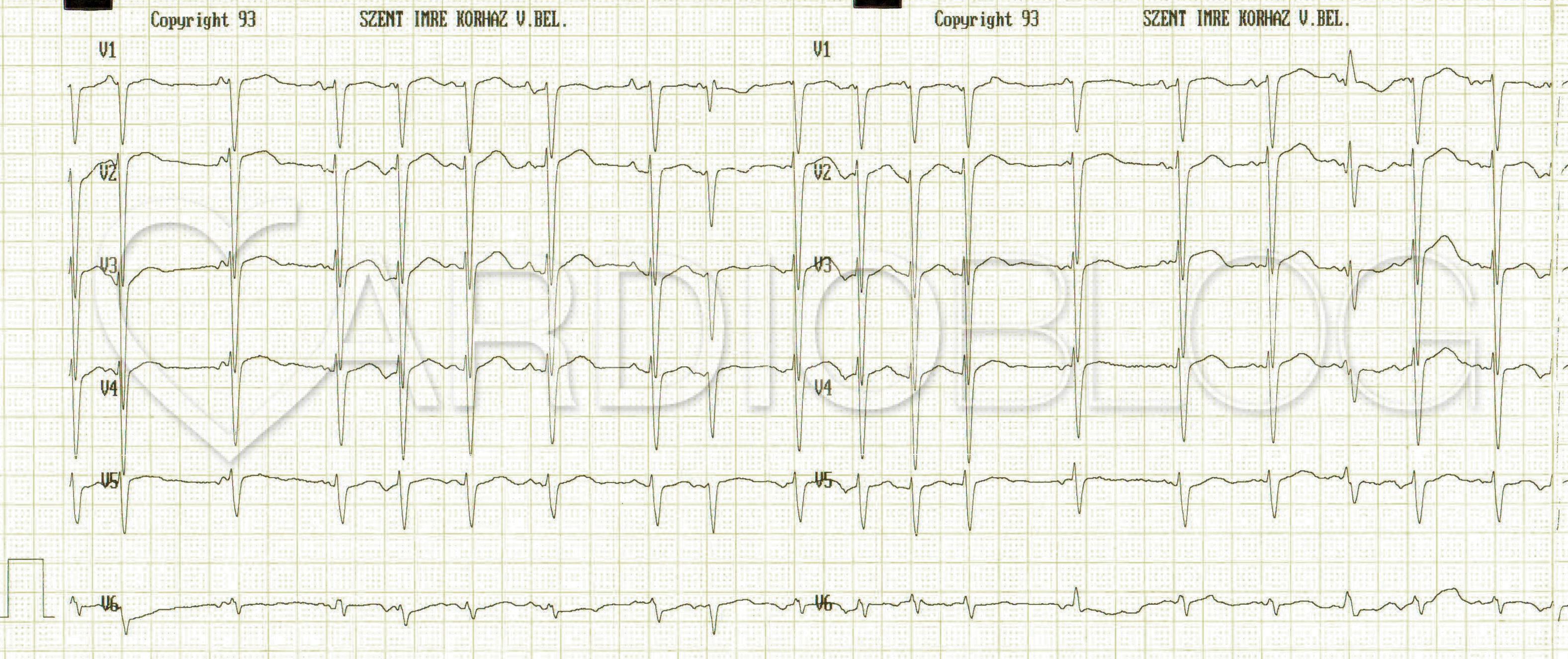 Mi a szív sinus ritmusa? - Magas vérnyomás