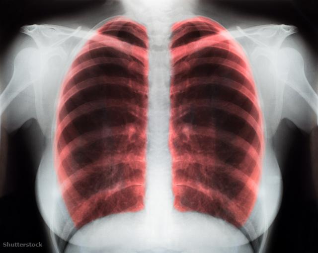 a magas vérnyomás gyakorlásának előnyei)