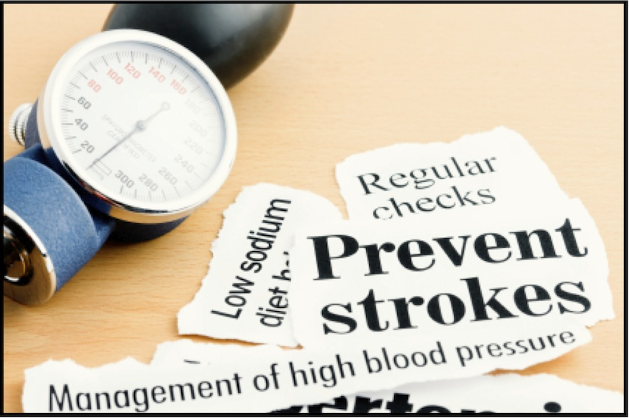 OTSZ Online - A magas vérnyomás kezelése akut stroke-ban