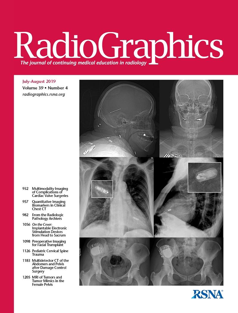 a nyaki gerinc hipertóniájának osteochondrosisát