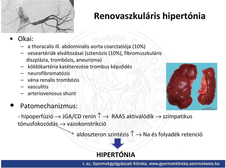 renovaszkuláris hipertónia kezelése mi a magas vérnyomás és a sürgősségi ellátás válságban