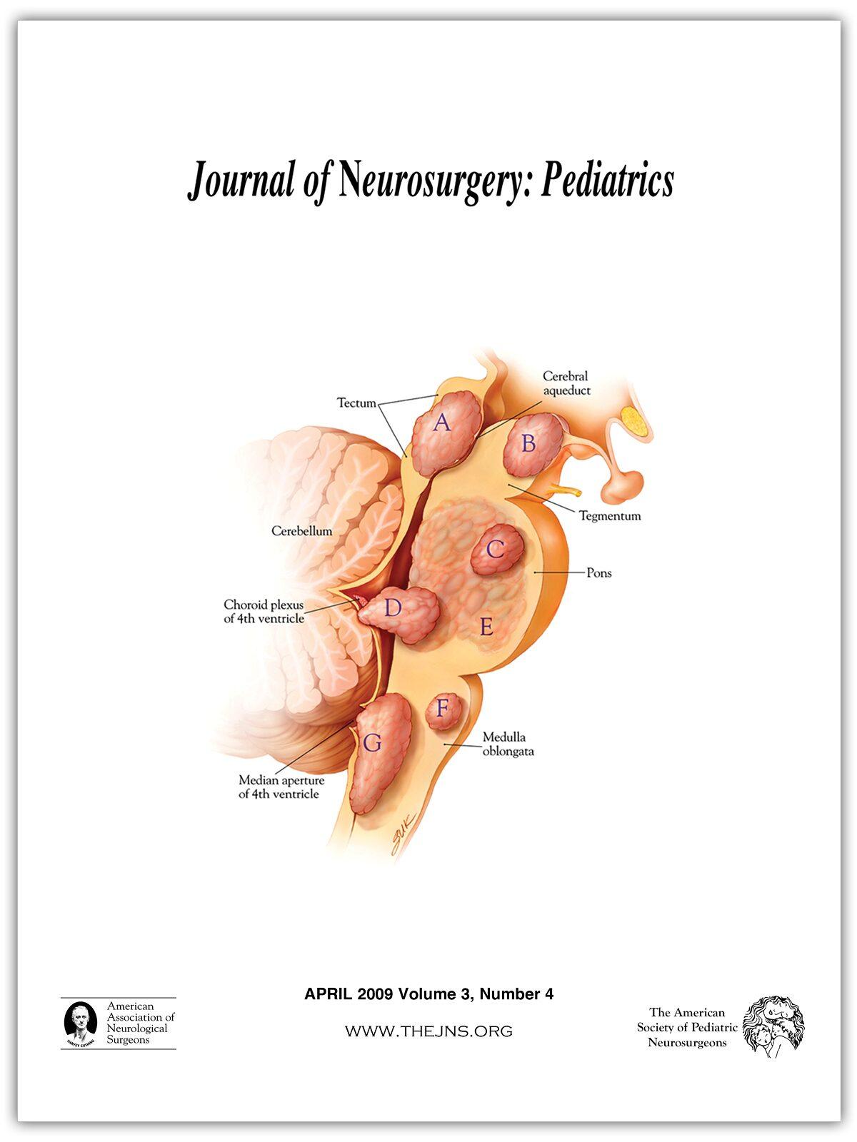miért vált a hipertónia hipotenzióvá szív hipertónia mit és hogyan kell kezelni