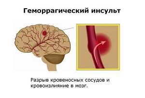 hipertóniás gingo-lebeny