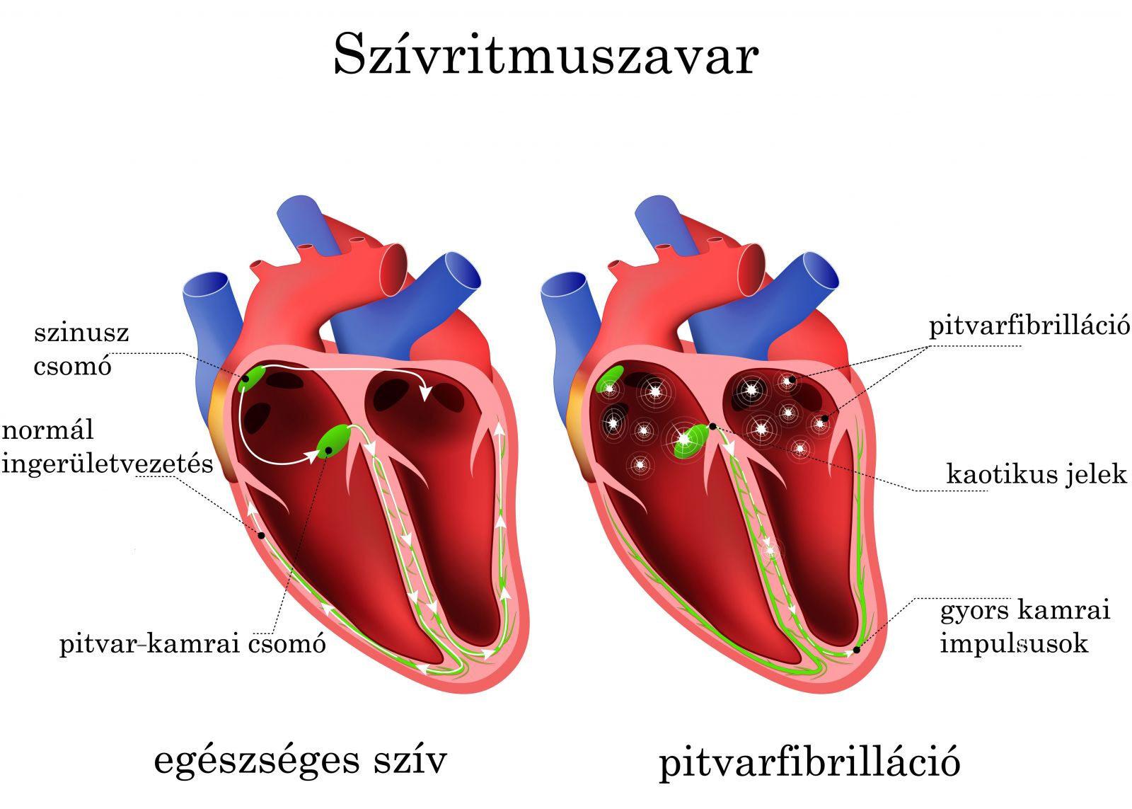 magas vérnyomás szúrja a szívet