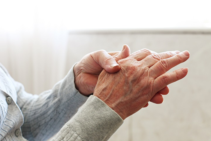 Reumatoid arthritis 6 oka, 5 tünete és 13 kezelési módja