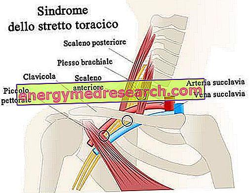 A csigolya artériás szindróma: tünetek és kezelési módszerek - Vasculitis November
