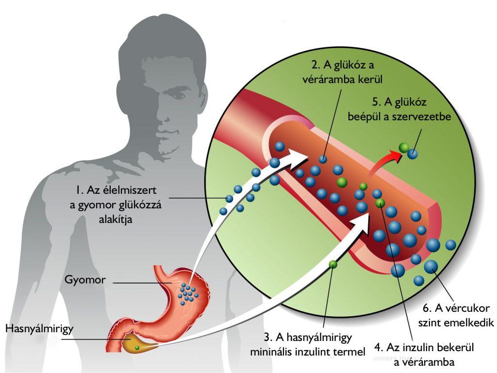 magas vérnyomás 2-es típusú cukorbetegségben)