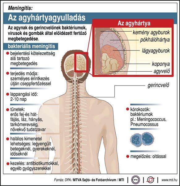 oris szekciók hipertónia ami a magas vérnyomás 2 szakaszának kockázatát jelenti