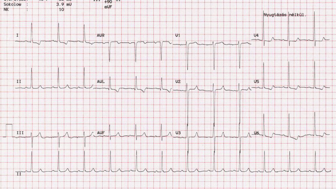magas vérnyomás 1 fokos sinus tachycardia