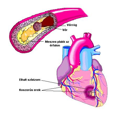 milyen szakaszai a magas vérnyomás