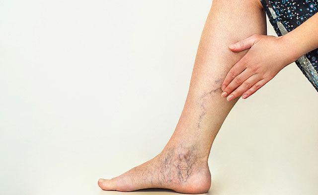 magas vérnyomás és visszér a lábakban